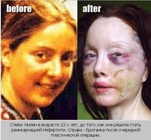 Нилен 22 года и после операции