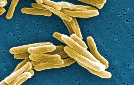 о-tuberkuleze