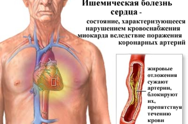 как питаться при лечении от паразитов