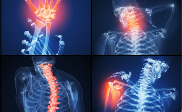 artrit-i-narodnoe-lechenie