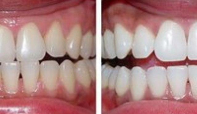 professionalno…elivanie-zubov.