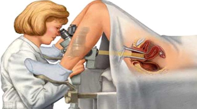 video-kak-ginekolog-osmatrivaet-zhenshin