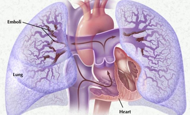 lechenie-tromboflebita
