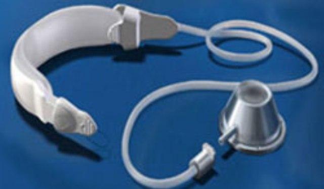 laparoskopicheskoe-bandazhirovanie-zheludka