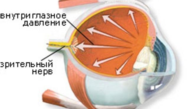 bolezn-katarakta