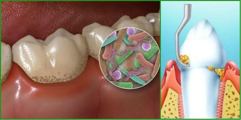 Удалять зубной камень в домашних условиях 614