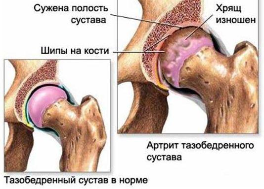 artroz-i-narodnaya-meditsina