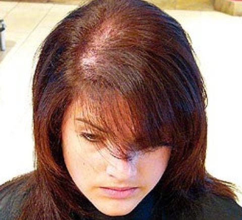 oblysenie О волосах. Продолжение…