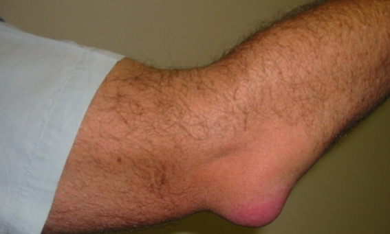 75675334 3925073 Bursitis Elbow WC Случается со многими…