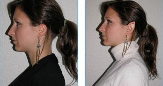 o-vozmozhnosty…eskoy-hirurgii