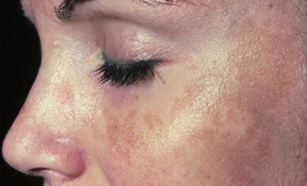 simptomemelasmacloasmacolasma 400 О пигментных пятнах.