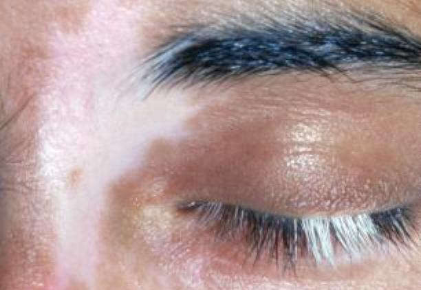 nevusyi-vitiligo-i-prochie