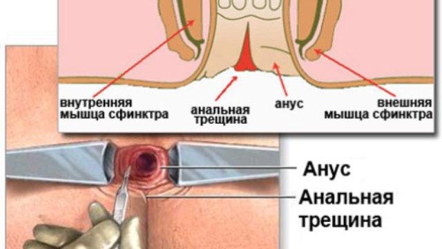 analnaya-treshhina