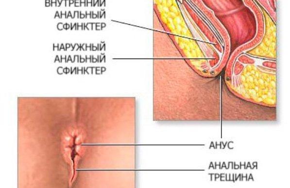 Народная медицина для лечения анальных трещин