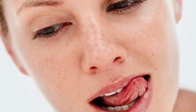 pomoshh-pri-kserostomii