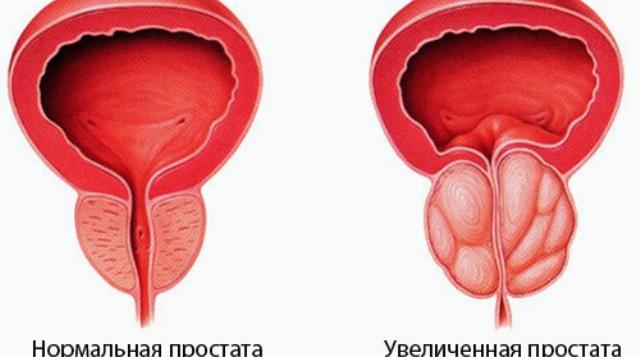 1340723512 prostatit1 Причины простатита.