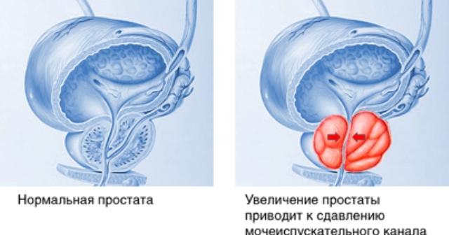 /podrobnee-o-pr…ya-prostatitom