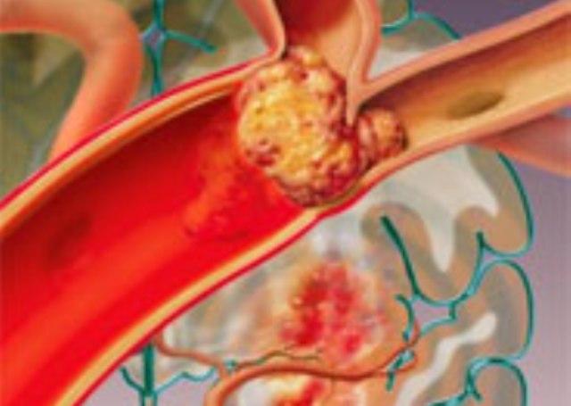 trombyi-i-trombozyi