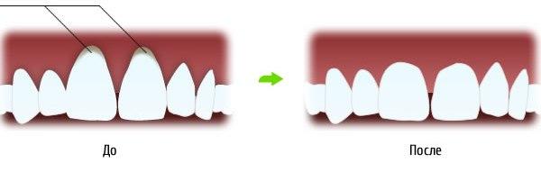 o-gingivoplastike