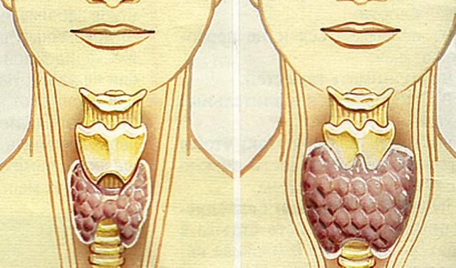 gipotireoz zhitovidnoj zhelezy Болезни щитовидной железы