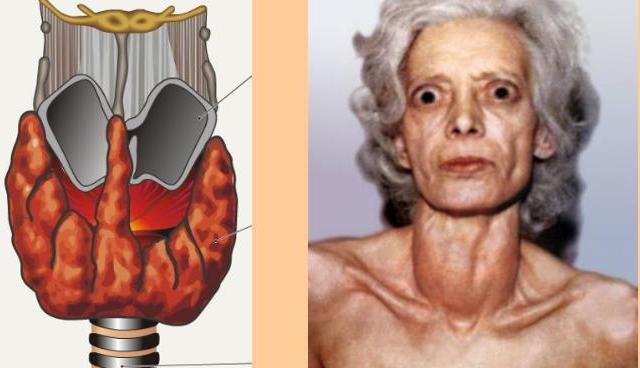 img10 Болезни щитовидной железы