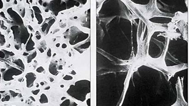 priznaki-osteoporoza