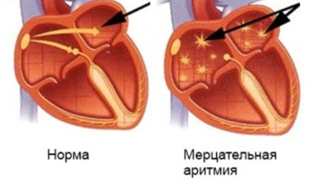 vidyi-aritmii