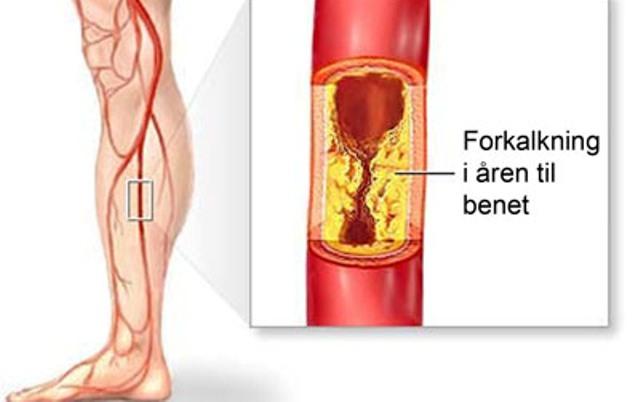aterosklerose ben Нарушение кровообращения нижних конечностей