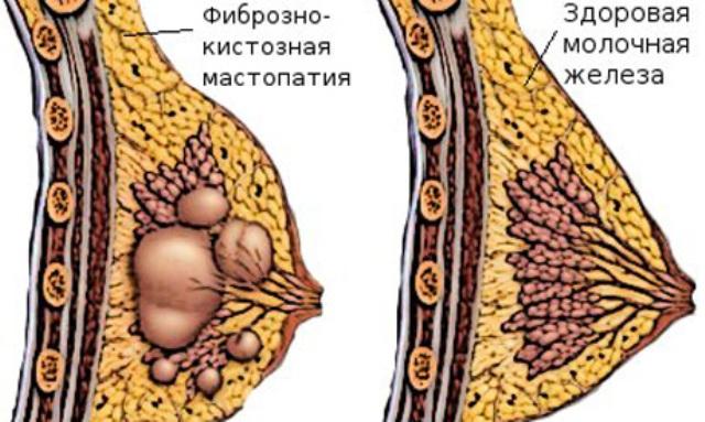 mastopatiya-prichinyi