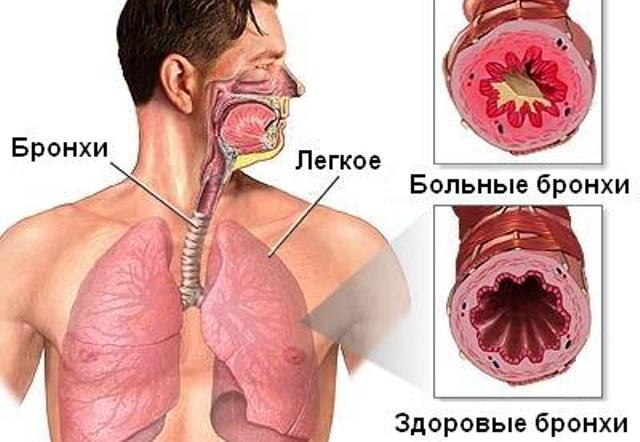 bronhialnaya-astma-prichinyi