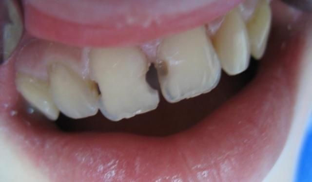 f5728cd9672373c3dcf678c5434d2371 Кариес на передних зубах