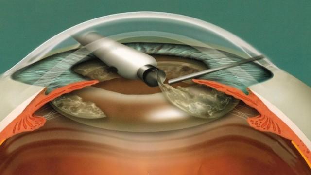 zamena-hrustal…-pri-katarakte