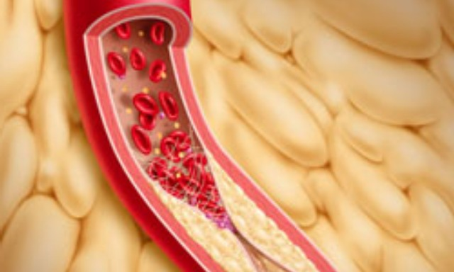 41 Тромбы в артериях