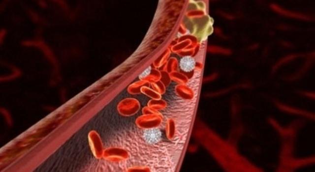 789830 Тромбы в артериях