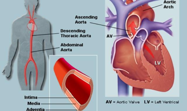 aorta 1 Тромбы в артериях