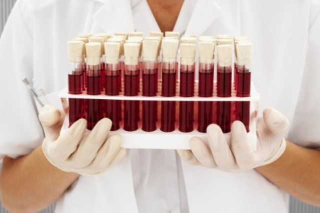 О группах крови людей