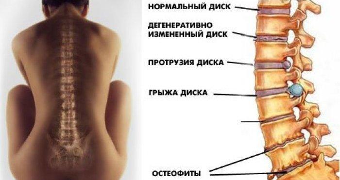 872d549b31d64c9d94a473b709050876 Часто встречающиеся болезни позвоночника
