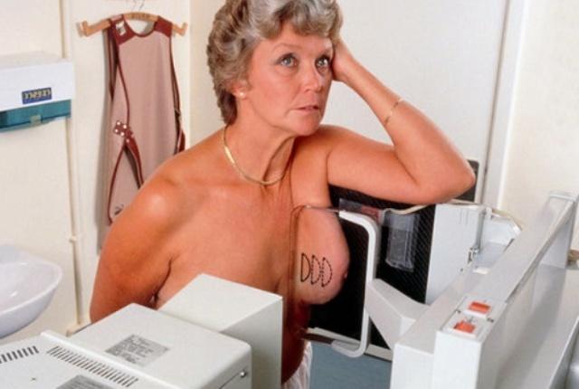 M4150118 Woman patient undergoing medio lateral mammography SPL resized width 6f64ac8f5ca9be7b90fe86abef17e185 500 q95 Зачем назначают маммографию