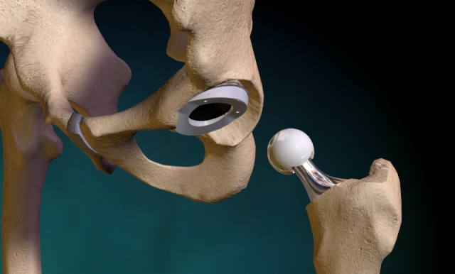 hip replacement Об эндопротезировании