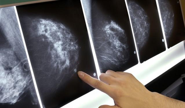 osobennosti-mammografii
