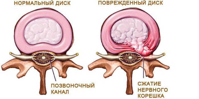 mezhpozvonochnaj gryzha diska 2 Часто встречающиеся болезни позвоночника
