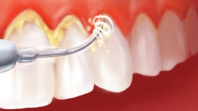 o-chistke-zubov-ultrazvukom