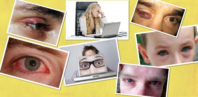 perv 4 Другие глазные болезни