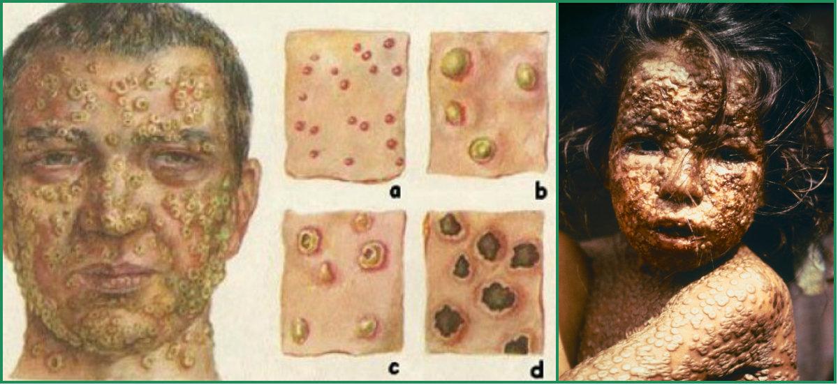 bolezni-proshlogo