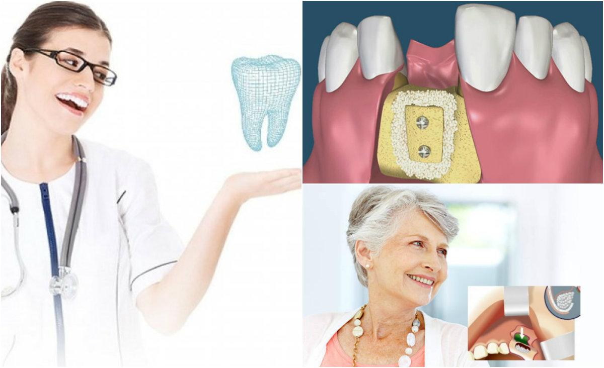 pervaya osteopl Остеопластика в стоматологии